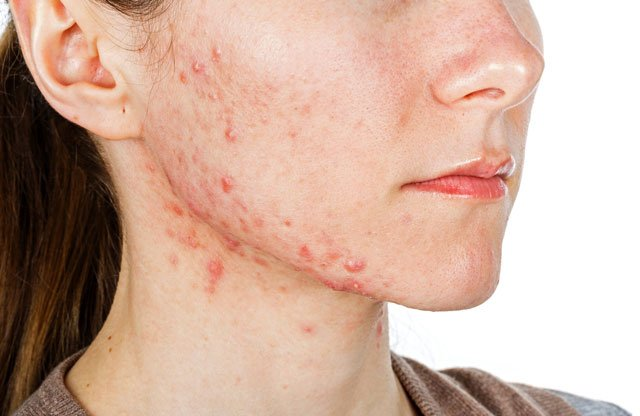 Pattanásokkal küzdesz? Ingyenes kezelés kedvenc bőrgyógyászomnál!