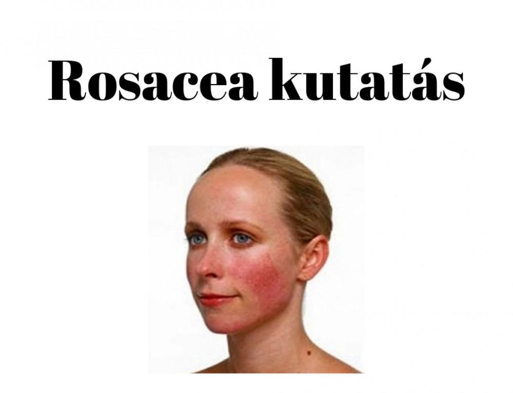 Rosaceával küzdesz? INGYENES kezelés kedvenc bőrgyógyászomnál?