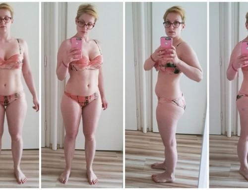 Akció: Cellulitkezelés, zsírfagyasztás Dr. Kriston Renátánál